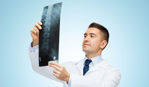 radiography--c-arm-systems